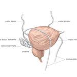 Le stress altère l'efficacité du traitement du cancer de la prostate